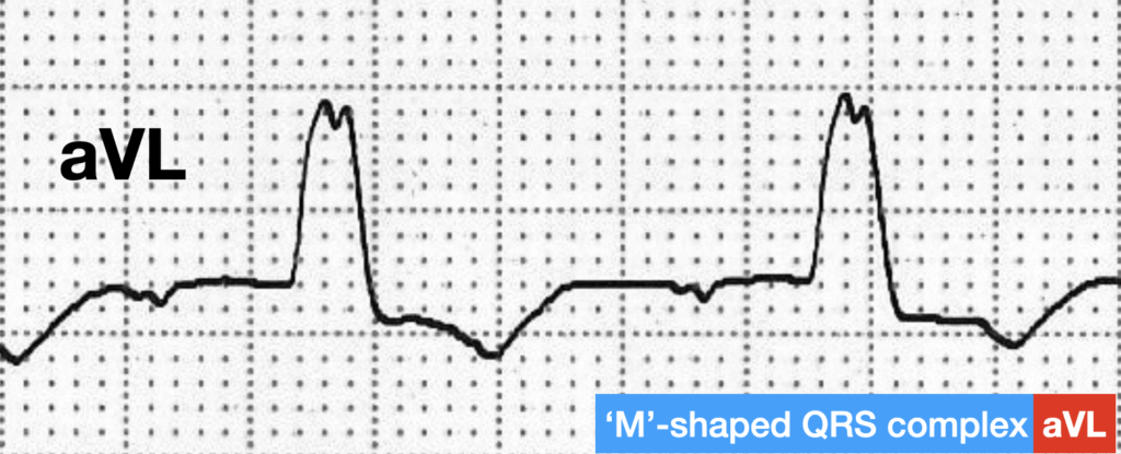 LBBB QRS morphology 'M'-shaped