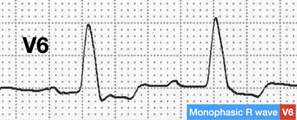 LBBB QRS morphology monophasic R wave
