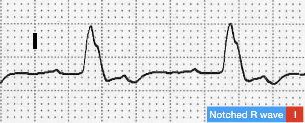 LBBB QRS morphology notched R wave