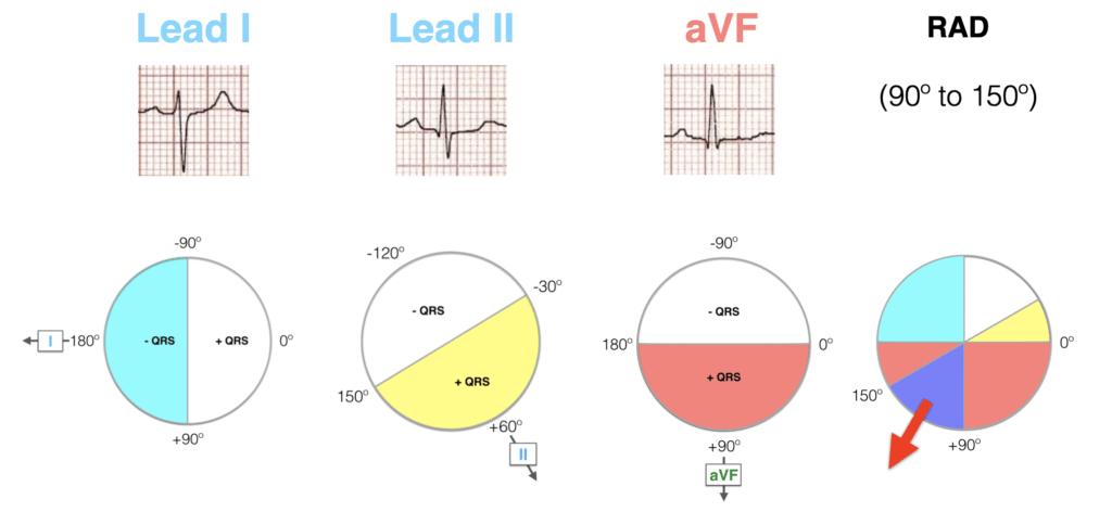 Lead-I-II-aVF-Hexaxial-Evaluation-RAD-2021 2