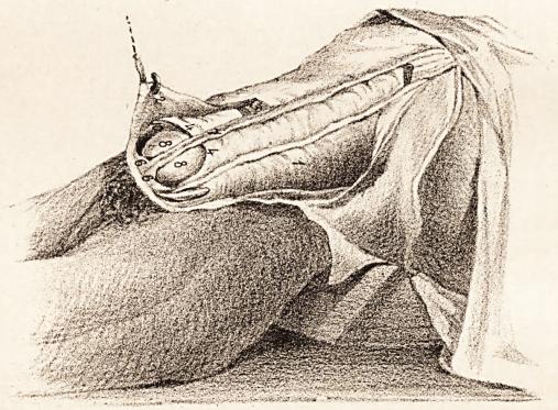 Semilunar lines of Douglas (4) dissection. Retzius 1858