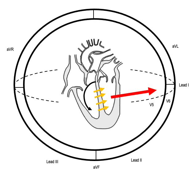Sequence of conduction in LBBB