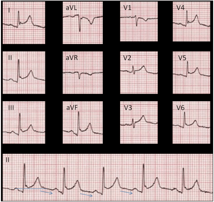 Spodick sign in stage 1 pericarditis