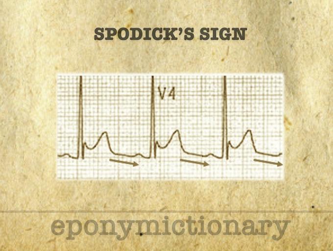 Spodick sign pericarditis 1974