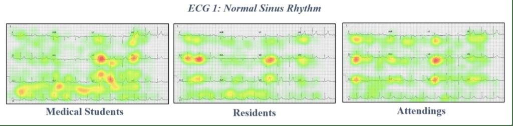 ECG 1 Normal sinus rhythm eye tracking data