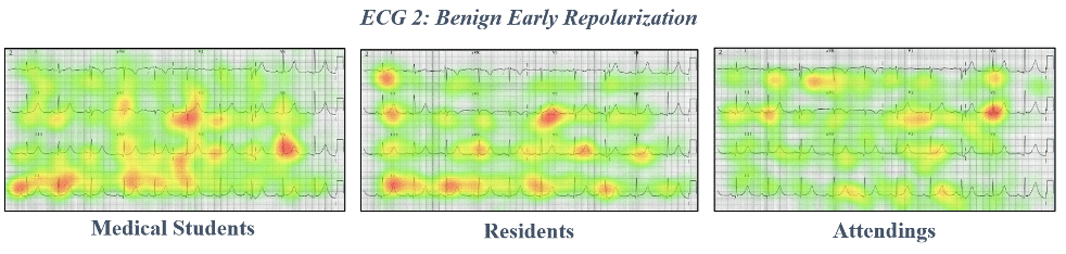 ECG 2 Benign early repolarisation eye tracking data