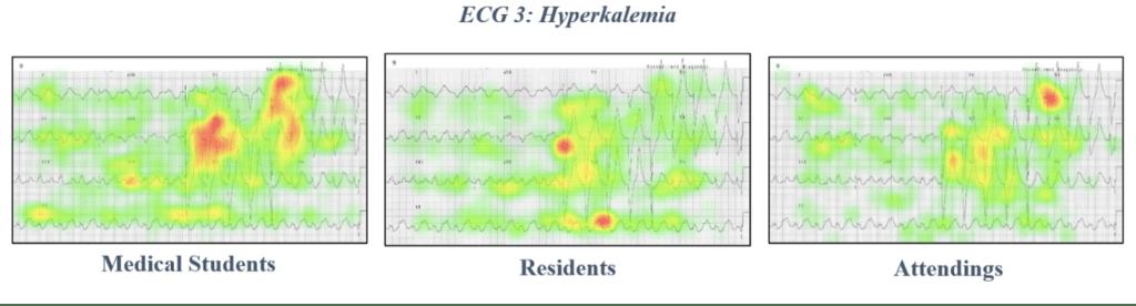 ECG 3 hyperkalemia eye tracking data