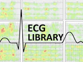 ECG Library visual tracking 340