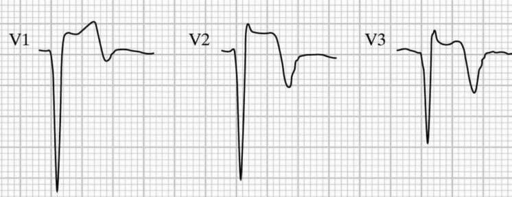 LV-aneurysm-V1-3