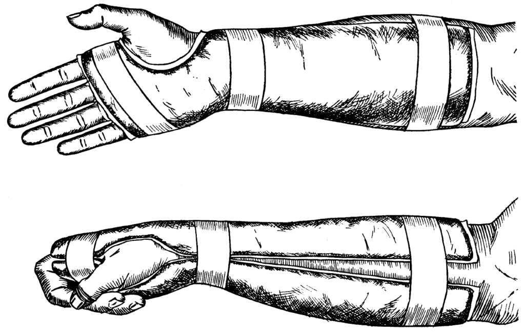 The molded plaster splint for Colles fractures with moderate Cotton-Loder position