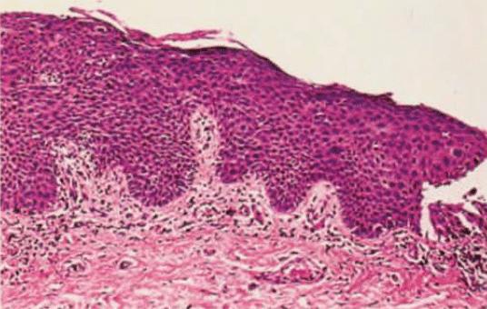 Bowenoid papulosis 1977 Kopf Bart