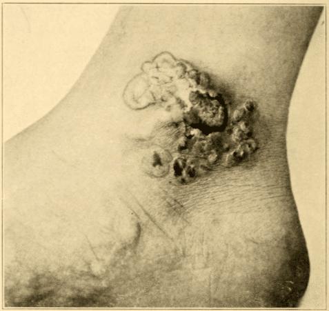 Bowen's disease cited by Darier 1914