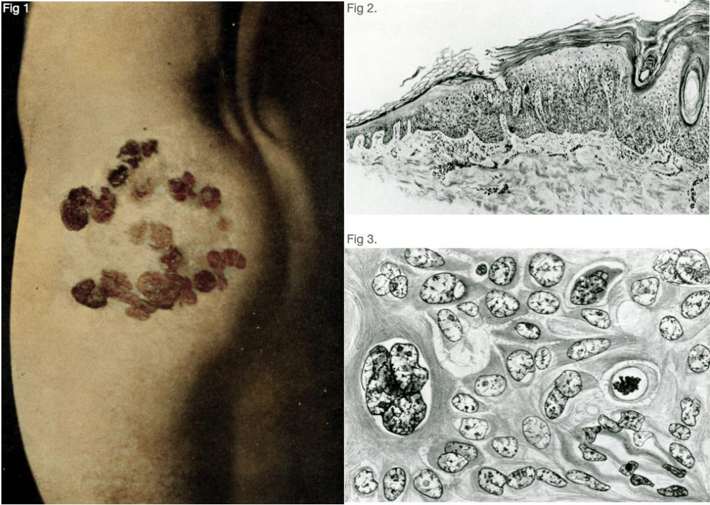Bowen's disease Precancerous Dermatosis of Bowen 1912 Case 1
