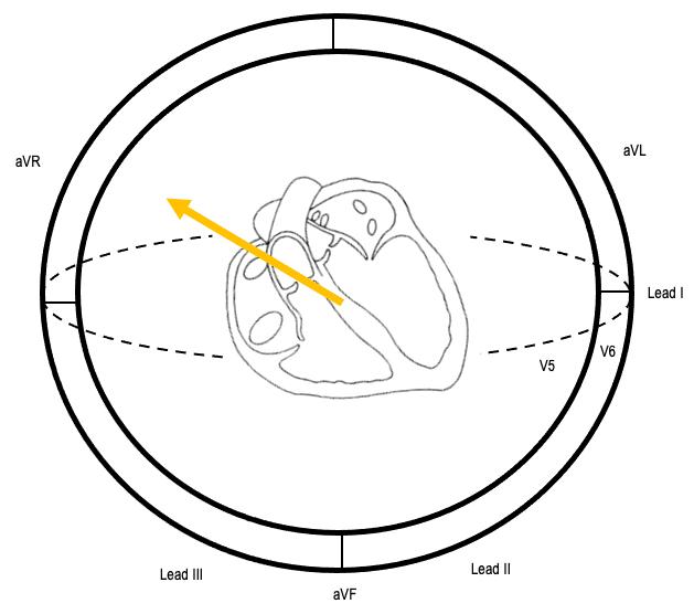 ST vector of subendocardial ischaemia