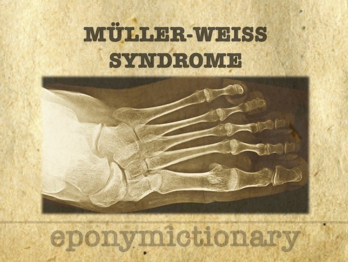 Müller-Weiss syndrome Brailsford disease 340