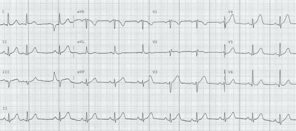 ECG-Case-125-1