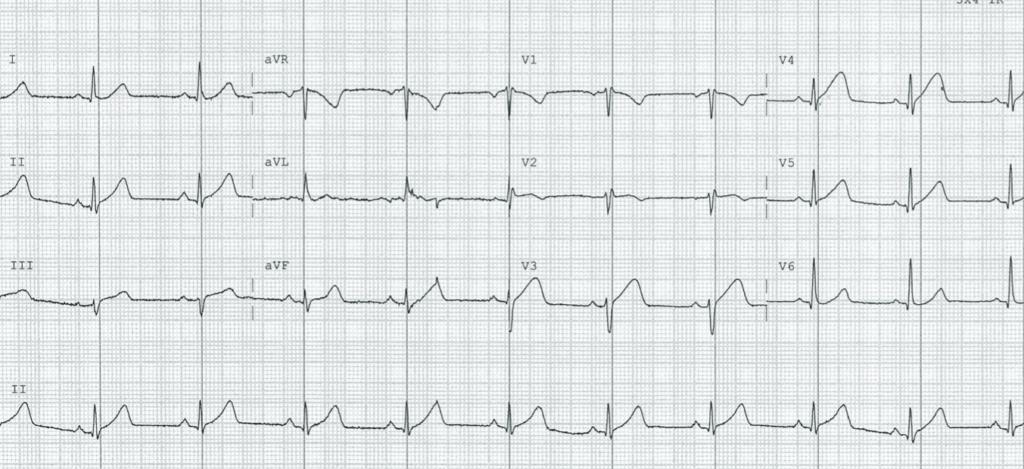 ECG-Case-125-2