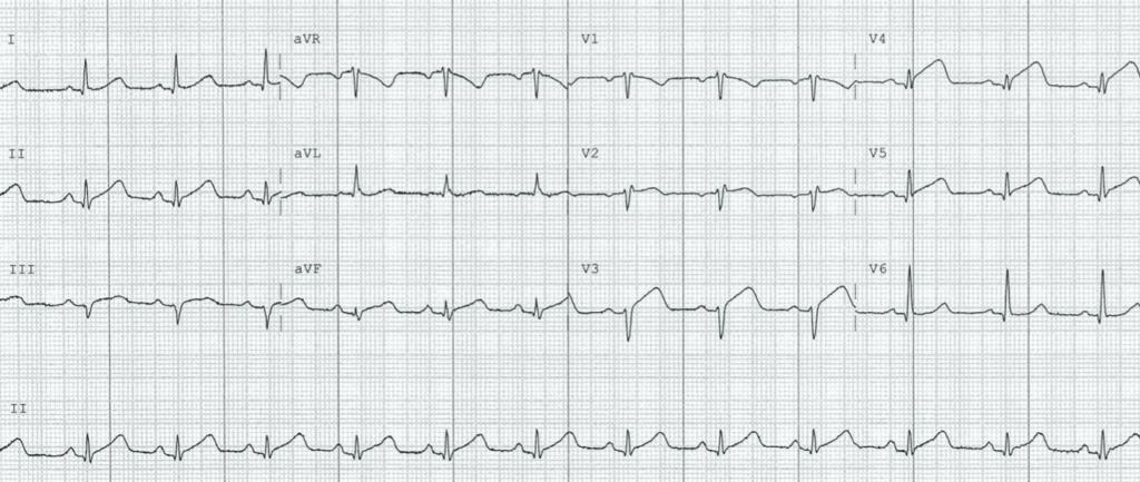 ECG-Case-125-3