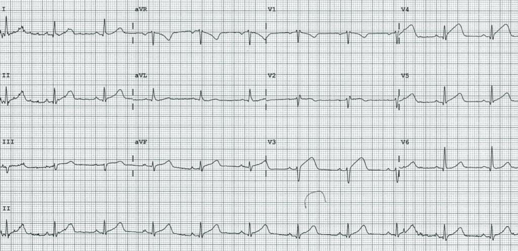 ECG-Case-125-4