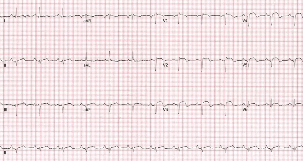 ECG-Case-125-discharge-2