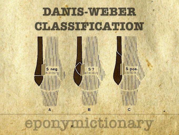 Danis-Weber classification 680