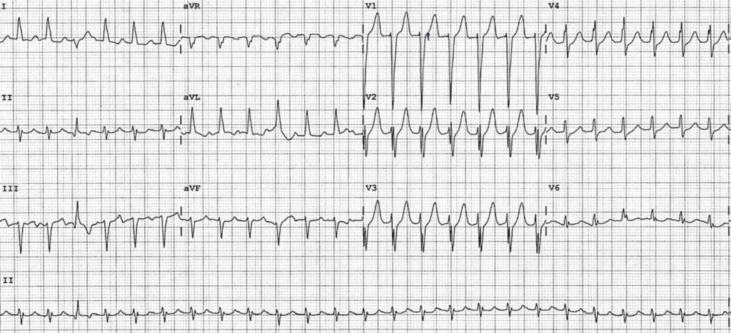 ECG-Case-131-1