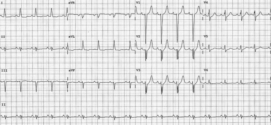 ECG-Case-131-2