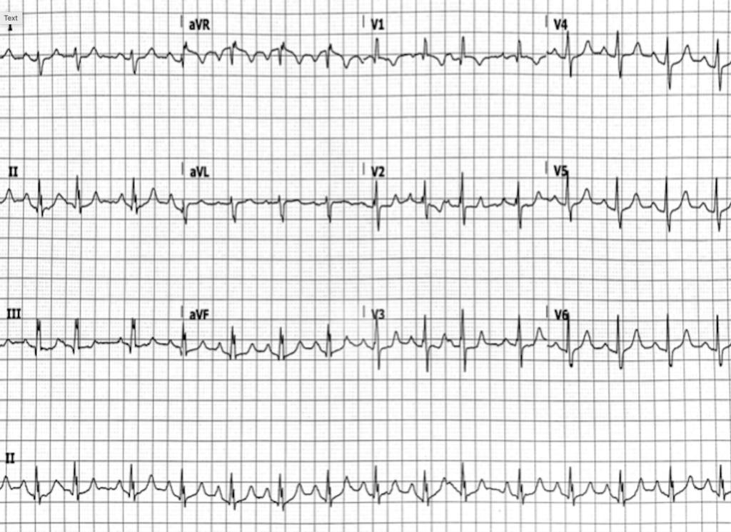 ECG Case 130 ECG 2