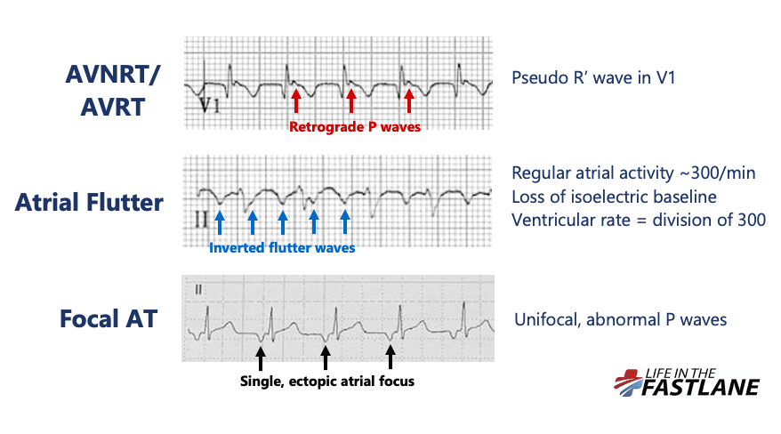 Differential diagnosis for regular narrow complex tachycardia