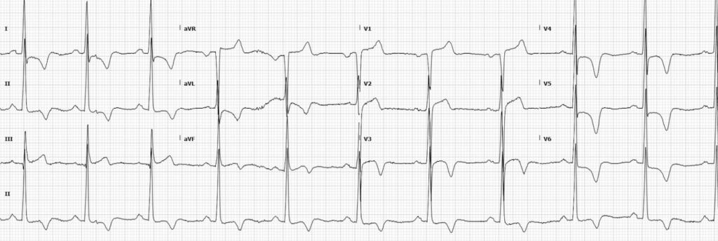 apical hypertrophic cardiomyopathy (HCM) LITFL