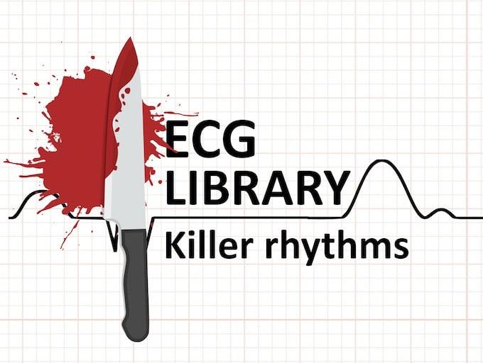 ECG Killer rhythms EKG Library 340