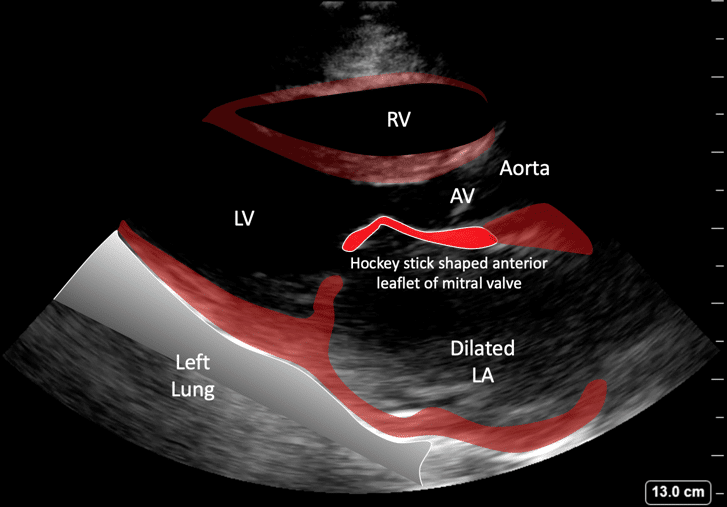 Mitral stenosis labels