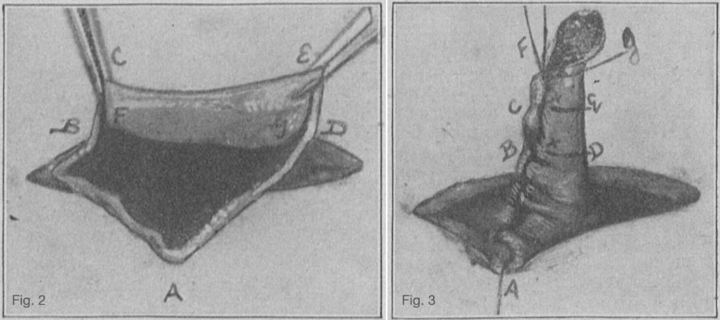Janeway gastrostomy 1913